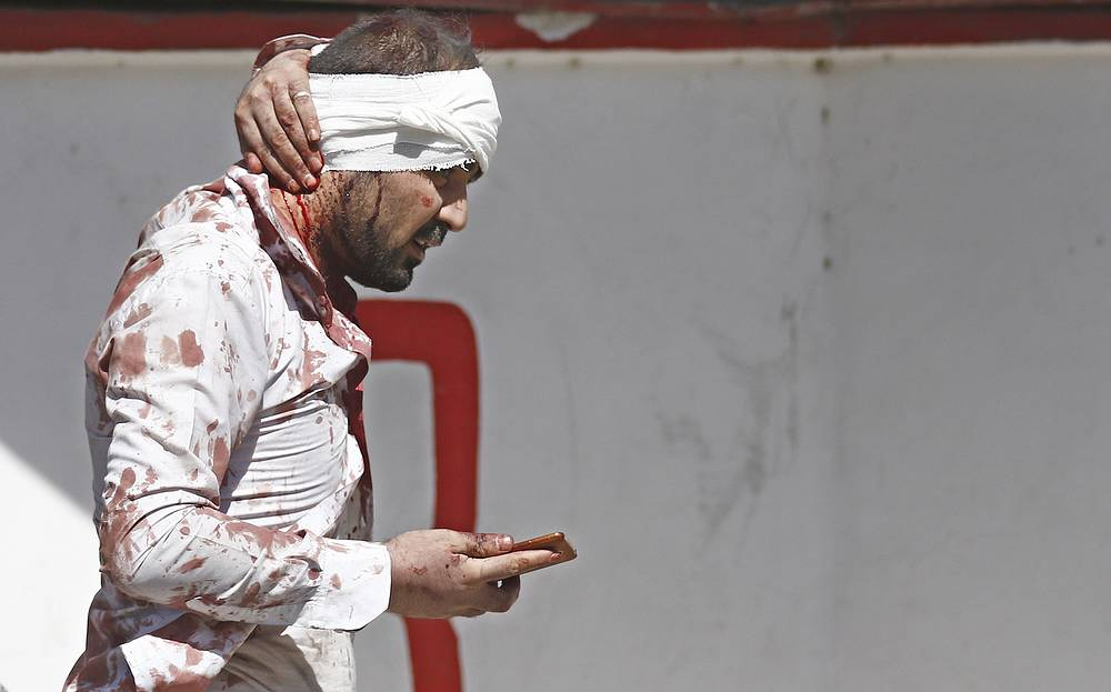 A man injured in a suicide bomb attack in Kabul's Wazir Akbar Khan neighborhood, Afghanistan, May 31