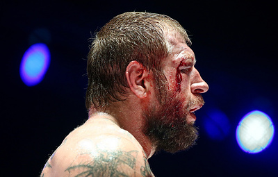 Александр Емельяненко опубликовал фото разбитого в бою с Джонсоном лица