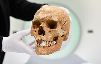 Черепа древних жителей Казахстана изучат с помощью томографа