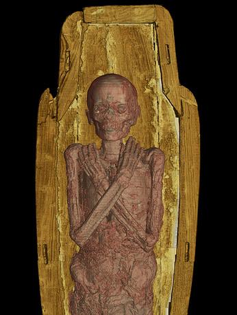 Компьютерная томография мумии 14-летнего египтянина из Древнего Египта эпохи Птолемеев