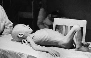 Ребенок-дистрофик во время блокады Ленинграда. Фото: ИТАР-ТАСС/Архив